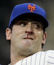 A Bloody nose wasn't enough to slow down Matt Harvey last night