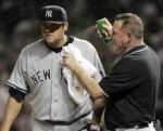 "Joba getting sprayed during the infamous ""Bug Game"""